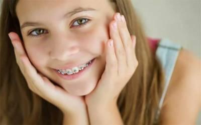 دانتوں کے ٹیڑھے پن کے علاج متعلق اچھی خبر